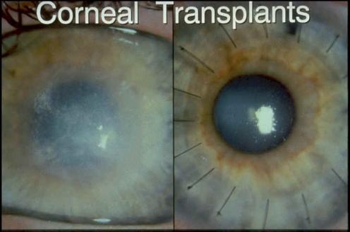 corneal-t
